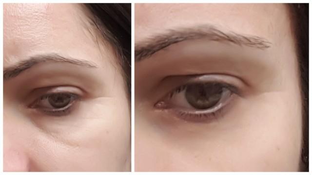 Skoncentrowane serum pod oczy Sotalie - żelazko na zmarszczki?