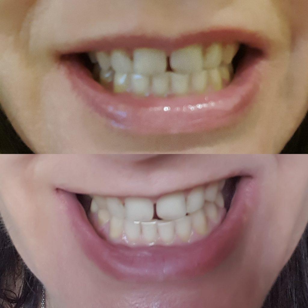 wybielanie zębów w domu efekty